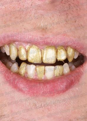 Kryolan Tooth Enamel 12ml (Gold)